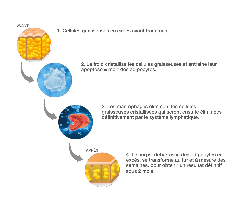 Fonctionnement schématique du procédé de Cryolipolyse